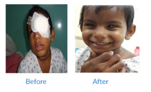 Susrut  For Complete Eye Care Protection and Treatment phaco