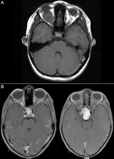Optic Nerve Glioma – A Rare Case Report